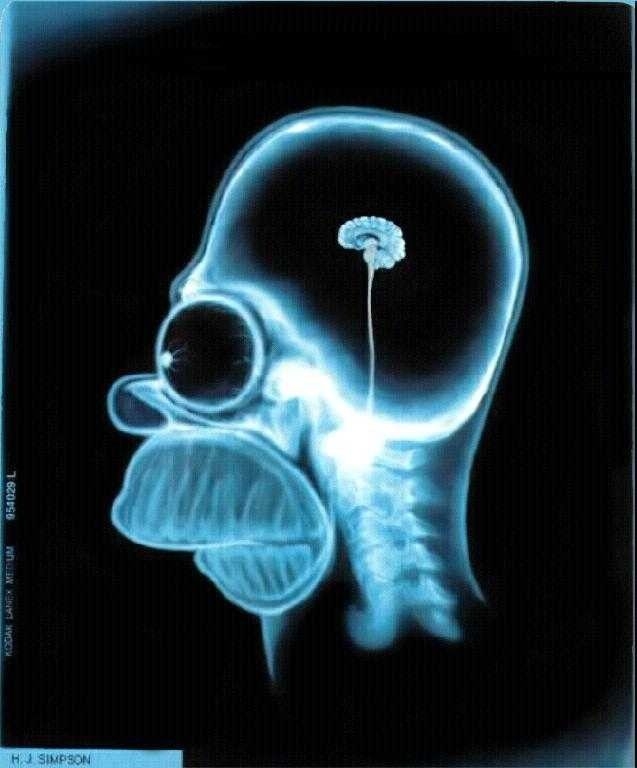 See the Suprising Funny Cat Scan Pictures